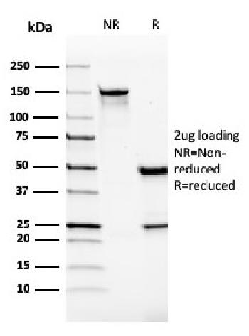 Fig. 1: SDS-PAGE Analysis Purified Monospecific Mouse Monoclonal Antibody to VISTA (VISTA/2865). Confirmation of Integrity and Purity of Antibody.