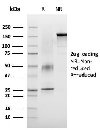 Fig. 3: SDS-PAGE Analysis Purified VISTA Monospecific Mouse Monoclonal Antibody (VISTA/3007). Confirmation of Integrity and Purity of Antibody.