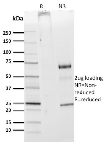 Fig. 3: SDS-PAGE Analysis Purified CDw75 Mouse Monoclonal Antibody (ZB55).Confirmation of Purity and Integrity of Antibody.