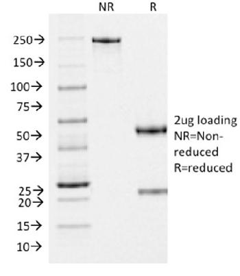 Fig. 3: SDS-PAGE Analysis Purified gp100 Mouse Monoclonal Antibody (PMEL/2037). Confirmation of Purity and Integrity of Antibody.