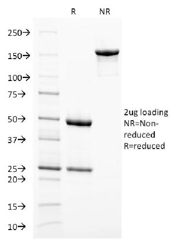 Fig. 3: SDS-PAGE Analysis Purified gp100 Mouse Monoclonal Antibody (PMEL/2038). Confirmation of Integrity and Purity of Antibody.