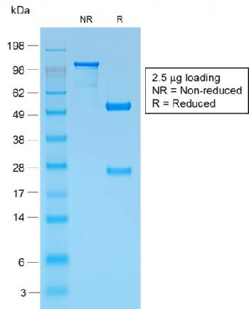 Fig. 2: SDS-PAGE Analysis Purified gp100 Rabbit Recombinant Monoclonal Antibody (PMEL/1825R). Confirmation of Purity and Integrity of Antibody.