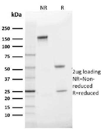 Anti-GLUT-1 (Tumor Progression and Mesothelioma Marker) Monoclonal Antibody(Clone: GLUT1/2475)