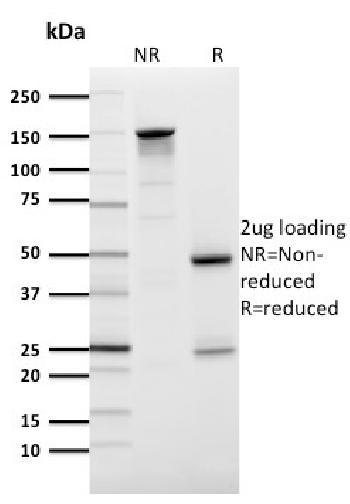 Fig. 3: SDS-PAGE Analysis Purified GLUT-1 Mouse Monoclonal Antibody (GLUT1/2476). Confirmation of Purity and Integrity of Antibody.