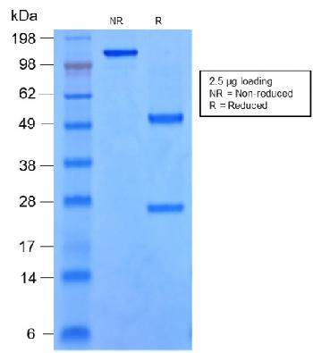 Fig. 1: SDS-PAGE Analysis of Purified SOX9 Monoclonal Antibody (rSOX9/2288). Confirmation of Integrity and Purity of the Antibody.