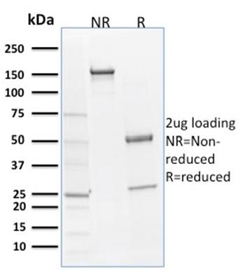 Fig. 2: SDS-PAGE Analysis Purified SOX9 Mouse Monoclonal Antibody (SOX9/2398). Confirmation of Integrity and Purity of Antibody.