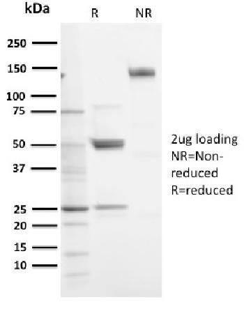 Fig. 2: SDS-PAGE Analysis Purified SOX9 Recombinant Rabbit Monoclonal Antibody (SOX9/3141R). Confirmation of Purity and Integrity of Antibody.