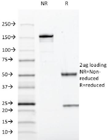 Fig. 4: SDS-PAGE Analysis Purified SOX10 Mouse Monoclonal Antibody (SOX10/991).Confirmation of Integrity and Purity of Antibody.