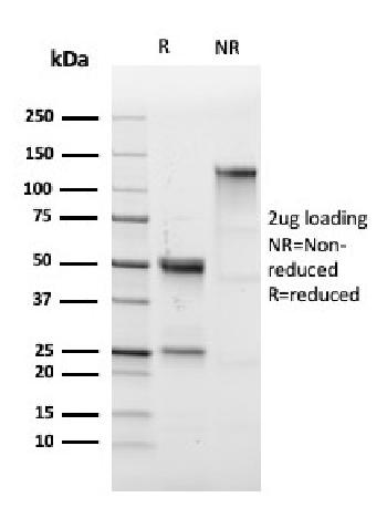 Fig. 2: SDS-PAGE Analysis Purified CD43 Rabbit Recombinant Monoclonal Antibody (SPN/1766R).