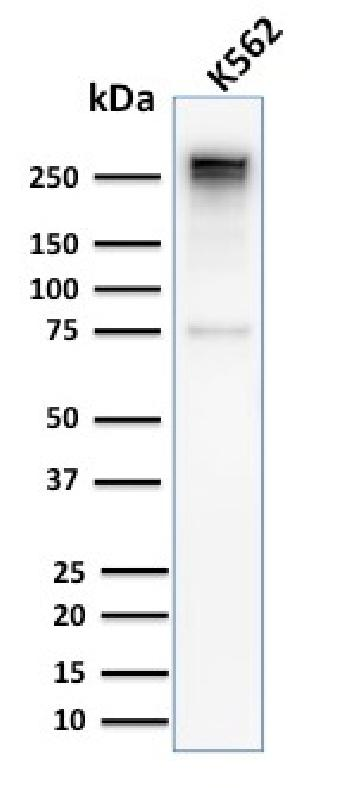 Fig. 4: Western Blot Analysis of Human K562 cell lysate using Spectrin alpha 1 Rabbit Recombinant Monoclonal Antibody (SPTA1/2939R).