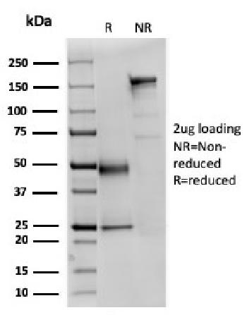 Fig. 3: SDS-PAGE Analysis Purified Fodrin Mouse Monoclonal Antibody (SPTAN1/3351). Confirmation of Purity and Integrity of Antibody.