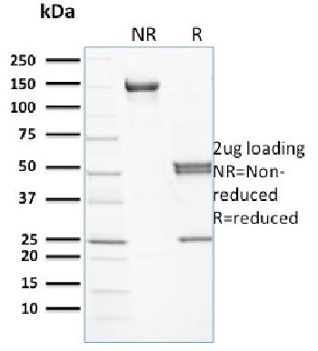 Fig. 1: SDS-PAGE Analysis Purified Spectrin beta III Mouse Monoclonal Antibody (RG/26). Confirmation of Purity and Integrity of Antibody.