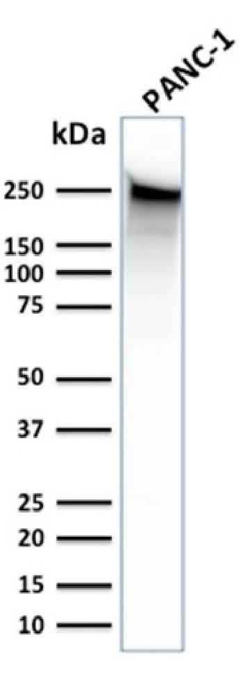 Fig. 6: Western Blot Analysis of human PANC-1 cell lysate using Spectrin beta III Monoclonal Antibody (SPTBN2/1583).