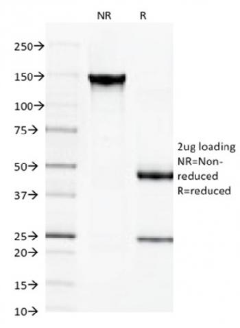 Fig. 6: SDS-PAGE Analysis Purified Spectrin beta III Monoclonal Antibody (SPTBN2/1584). Confirmation of Integrity and Purity of Antibody.