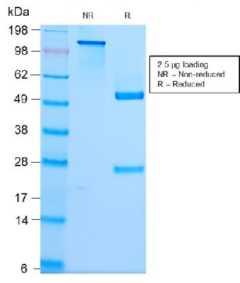 Fig. 2: SDS-PAGE Analysis Purified Spectrin Beta 3 Rabbit Monoclonal Antibody (SPTBN2/2979R). Confirmation of Purity and Integrity of Antibody.