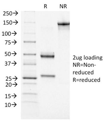 Fig. 1: SDS-PAGE Analysis Purified BRCA1 Mouse Monoclonal Antibody (BRCA1/1472). Confirmation of Integrity and Purity of Antibody.