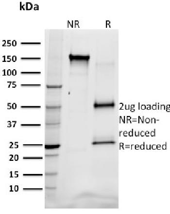 Fig. 1: SDS-PAGE Analysis Purified SREBP1 Mouse Monoclonal Antibody (SREBP1/1578). Confirmation of Integrity and Purity of Antibody.