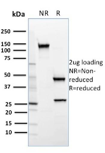 Fig. 1: SDS-PAGE Analysis Purified SREBP2 Mouse Monoclonal Antibody (SREBP2/1579). Confirmation of Purity and Integrity of Antibody.