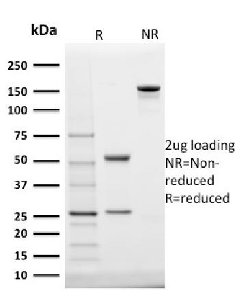 Fig. 3: SDS-PAGE Analysis Purified StAR Mouse Monoclonal Antibody (STAR/2140). Confirmation of Integrity and Purity of Antibody.