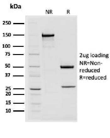 Fig. 3: SDS-PAGE Analysis Purified STAT2 Mouse Monoclonal Antibody (STAT2/2650). Confirmation of Purity and Integrity of Antibody.