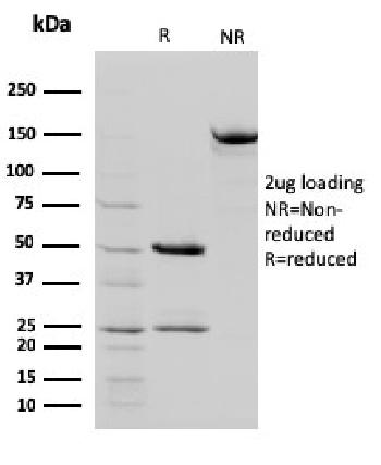Fig. 1: SDS-PAGE Analysis Purified STAT5B Mouse Monoclonal Antibody (STAT5B/2657). Confirmation of Integrity and Purity of Antibody.