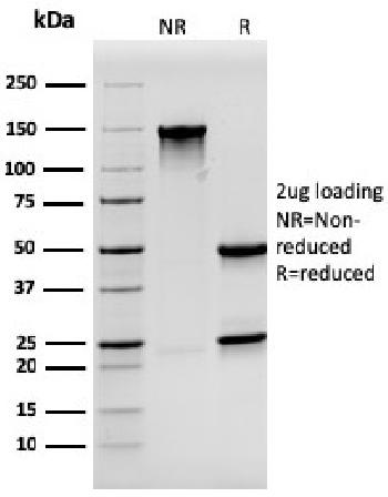 Fig. 3: SDS-PAGE Analysis Purified Synaptophysin Mouse Monoclonal Antibody (SYP/3551). Confirmation of Purity and Integrity of Antibody.