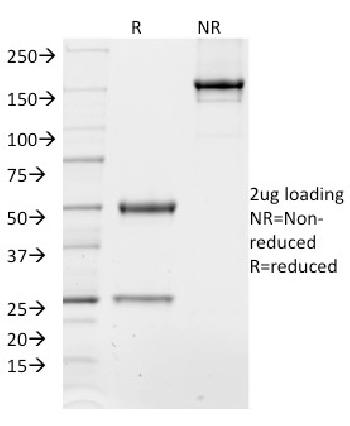 Fig. 2: SDS-PAGE Analysis of Purified TCF4 Mouse Monoclonal Antibody (TCF4/1705). Confirmation of Purity and Integrity of Antibody.
