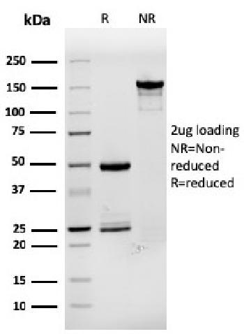 Fig. 2: SDS-PAGE Analysis Purified TFF1/ps2 Mouse Monoclonal Antibody (rTFF1/1091). Confirmation of Purity and Integrity of Antibody.