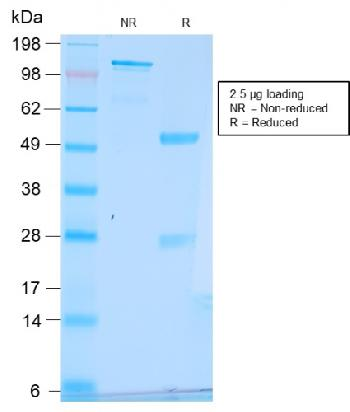 Fig. 2: SDS-PAGE Analysis Purified pS2 Rabbit Recombinant Monoclonal Antibody (TFF1/2969R). Confirmation of Purity and Integrity of Antibody.