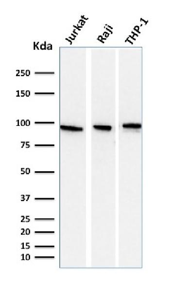 Fig. 3: Western Blot Analysis of Jurkat, Raji, and THP-1 cell lysate using CD71 Mouse Monoclonal antibody (DF1513).
