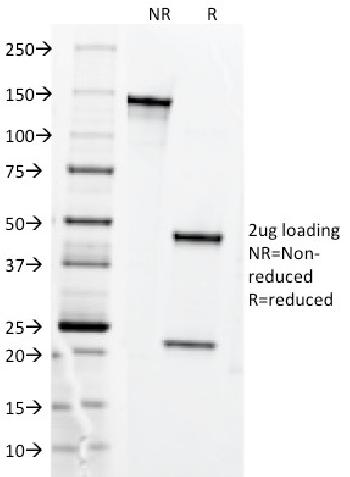 Fig. 4: SDS-PAGE Analysis Purified CD71 Mouse Monoclonal antibody (DF1513). Confirmation of Purity and Integrity of Antibody.