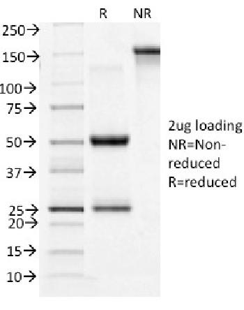 Fig. 1: SDS-PAGE Analysis Purified CD71 Mouse Monoclonal Antibody (TFRC/1396). Confirmation of Integrity and Purity of Antibody.
