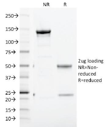 Fig. 4: SDS-PAGE Analysis Purified CD71 Mouse Monoclonal Antibody (TFRC/1817). Confirmation of Purity and Integrity of Antibody.