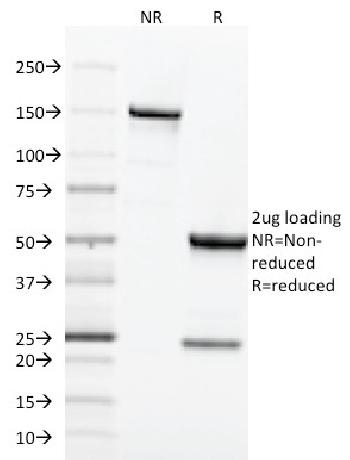 Anti-CD71 / Transferrin Receptor (TFRC) (Extracellular Domain) Monoclonal Antibody(Clone: TFRC/1818)