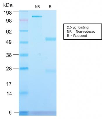 Fig. 2: SDS-PAGE Analysis Purified CD71 Rabbit Recombinant Monoclonal Antibody (TFRC/2898R). Confirmation of Purity and Integrity of Antibody.