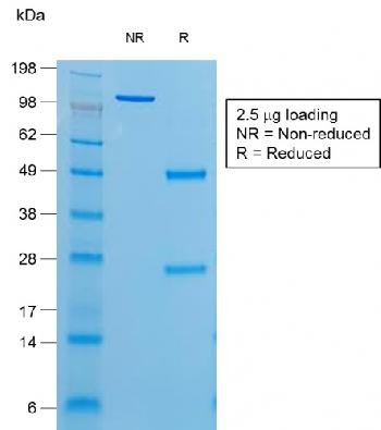 Fig. 2: SDS-PAGE Analysis of Purified Thyroglobulin Mouse Recombinant Monoclonal Antibody (r6E1). Confirmation of Purity and Integrity of Antibody.