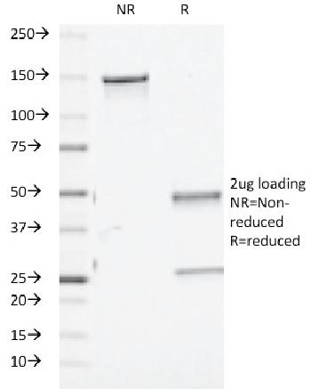 Fig. 1: SDS-PAGE Analysis Purified TGF beta Mouse Monoclonal Antibody (TGFB/510). Confirmation of Purity and Integrity of Antibody.