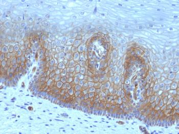 Anti-Thrombomodulin / CD141 (Endothelial Cell Marker) Monoclonal Antibody(Clone: rTHBD/1591)