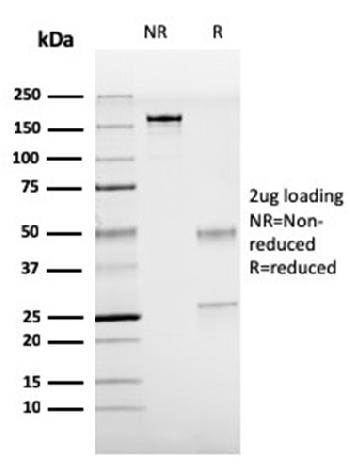 Anti-TTF-1 / NKX2.1 (Thyroid & Lung Epithelial Marker) Monoclonal Antibody(Clone: rNX2.1/690)
