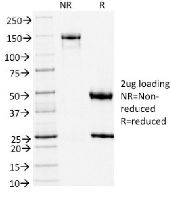 Anti-TLE1 (Synovial Sarcoma Marker) Monoclonal Antibody(Clone: TLE1/2051)