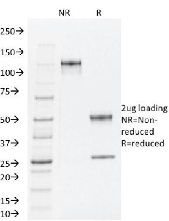 Fig. 4: SDS-PAGE Analysis Purified TLE1 Mouse Monoclonal Antibody (TLE1/2062). Confirmation of Integrity and Purity of Antibody.