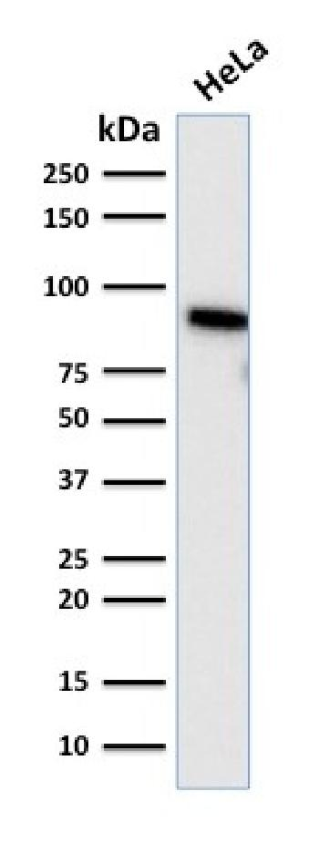 Anti-TLE1 (Synovial Sarcoma Marker) Monoclonal Antibody(Clone: TLE1/2085)