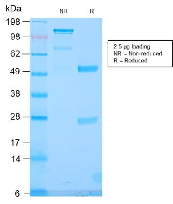 Anti-TLE1 (Synovial Sarcoma Marker) Monoclonal Antibody(Clone: TLE1/2946R)