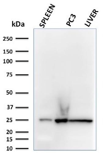 Fig. 1: Western Blot Analysis of human spleen, PC3 and liver lysates using C1QA Mouse Monoclonal Antibody (C1QA/2783).