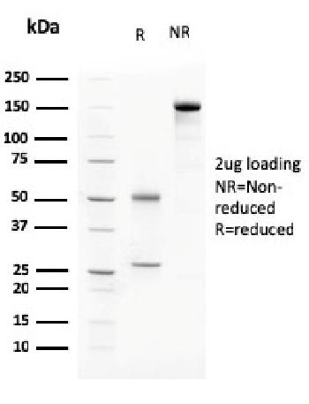Fig. 3: SDS-PAGE Analysis Purified C1QA Mouse Monoclonal Antibody (C1QA/2783). Confirmation of Purity and Integrity of Antibody.