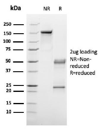 Fig. 3: SDS-PAGE Analysis Purified C1QA Mouse Monoclonal Antibody (C1QA/2953). Confirmation of Integrity and Purity of Antibody.