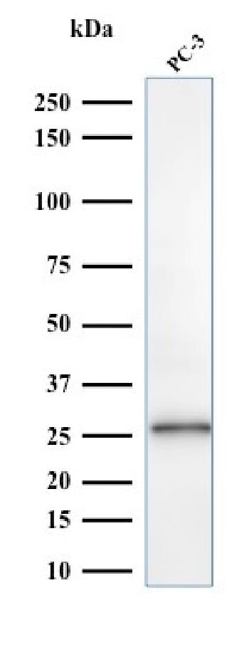 Fig. 4: Western Blot Analysis of PC-3 cell lysate using C1QA Mouse Monoclonal Antibody (C1QA/2953).