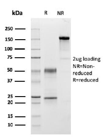 Fig. 3: SDS-PAGE Analysis Purified C1QA Mouse Monoclonal Antibody (C1QA/2954). Confirmation of Purity and Integrity of Antibody.