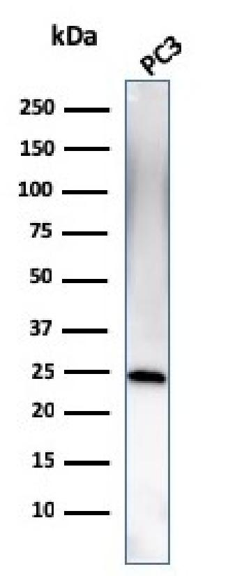 Fig. 4: Western Blot Analysis of human PC3 cell lysate using C1QA Mouse Monoclonal Antibody (C1QA/2954).