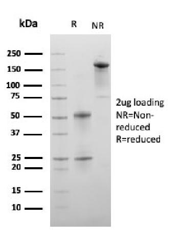 Fig. 3: SDS-PAGE Analysis Purified C1QA Mouse Monoclonal Antibody (C1QA/2956). Confirmation of Purity and Integrity of Antibody.